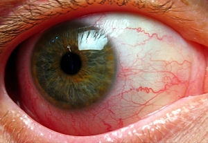 Eyeball1-2